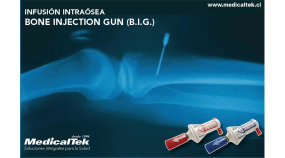 BONE INJECTION GUN (B.I.G.)